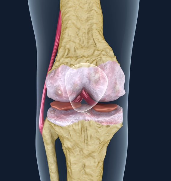 3d model osteoporosis knee joint
