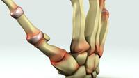 rheumatoid arthritis 3d model
