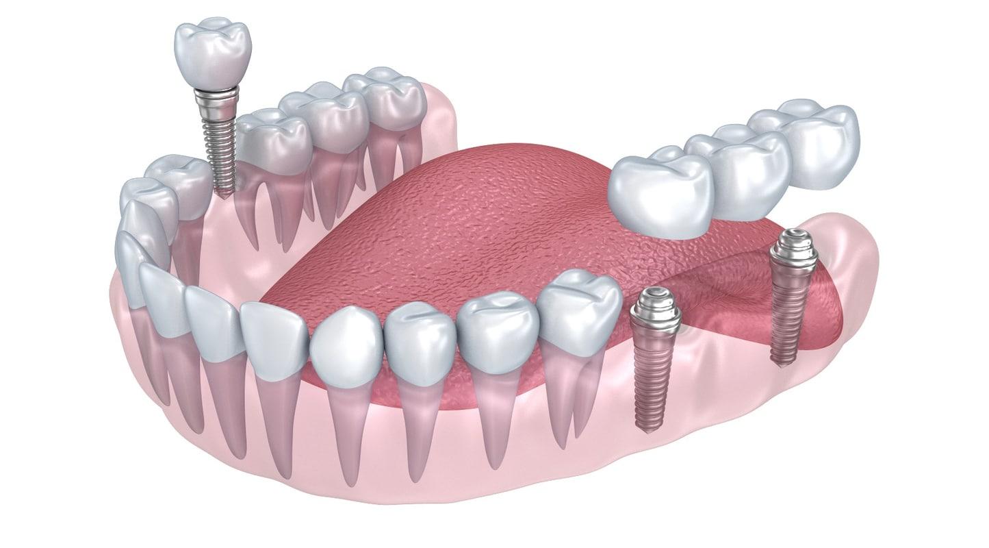 lower teeth crown dental 3d max