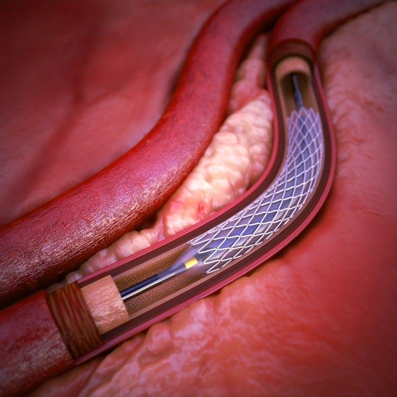 coronary artery stent 3d max