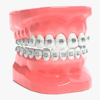 3D mouth braces modeled model