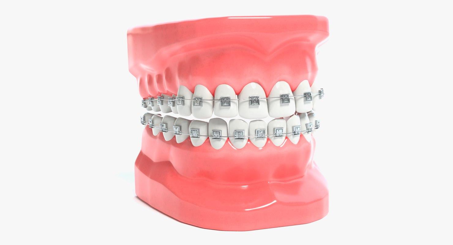 3D mouth braces modeled model