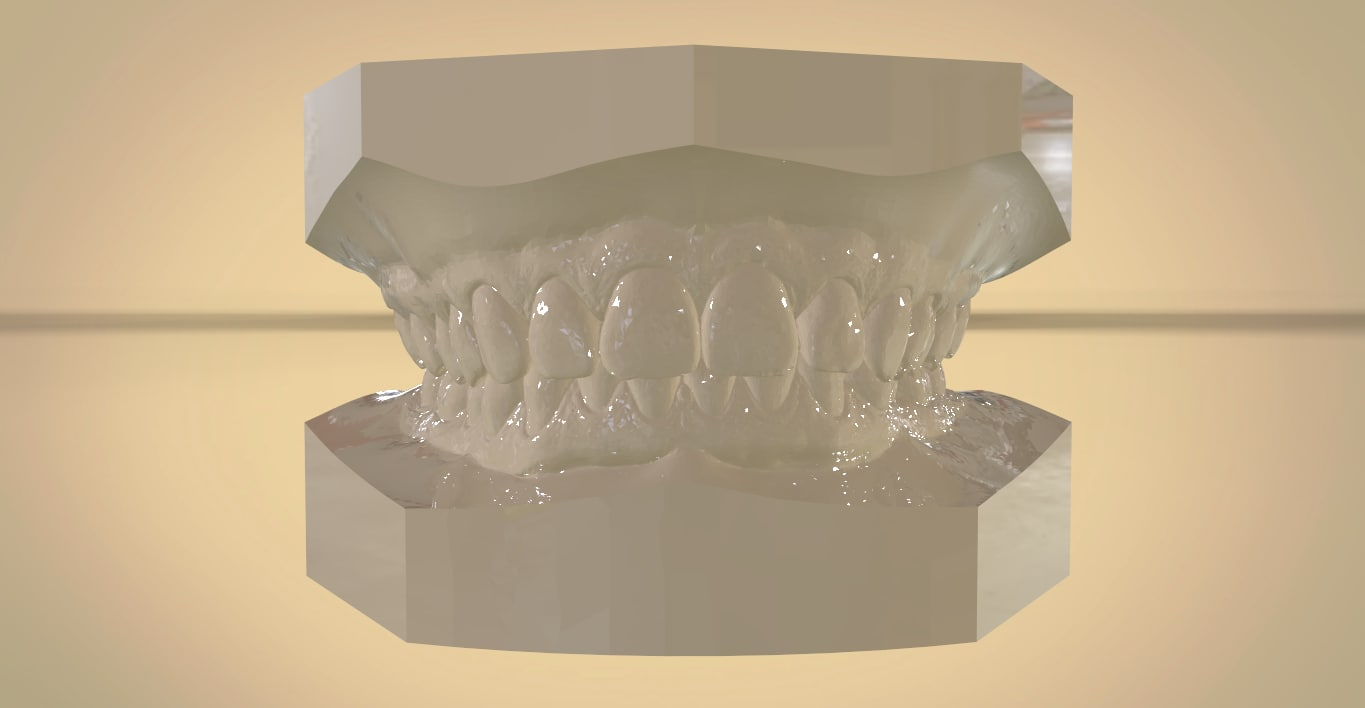 digital orthodontic study virtual 3D model