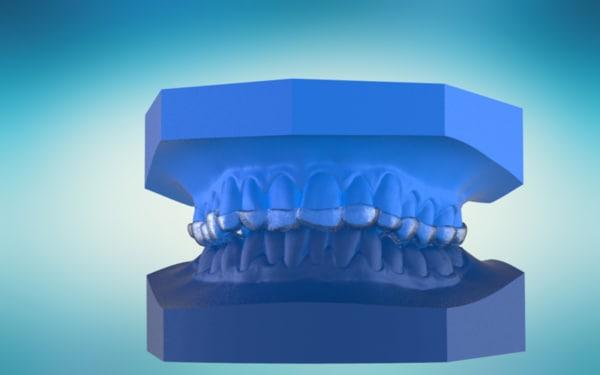 3D digital anterior repositioner splint