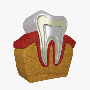 3D tooth diagram model