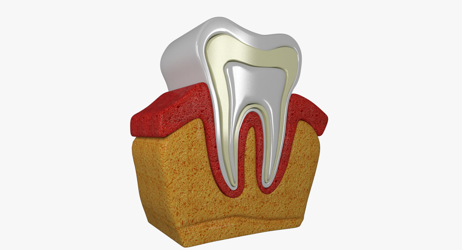 3D tooth diagram model
