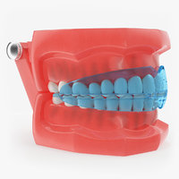 typodont transparent removable retainer 3D