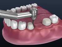 Tooth supported fixed bridge and single crown. Animated process