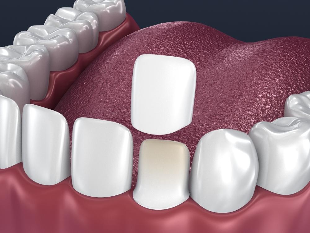 dental veneer preparation instalation 3D model