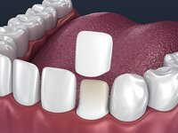 dental veneer preparation instalation 3D model