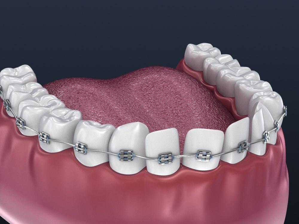 dental orthodontic braces 3D model