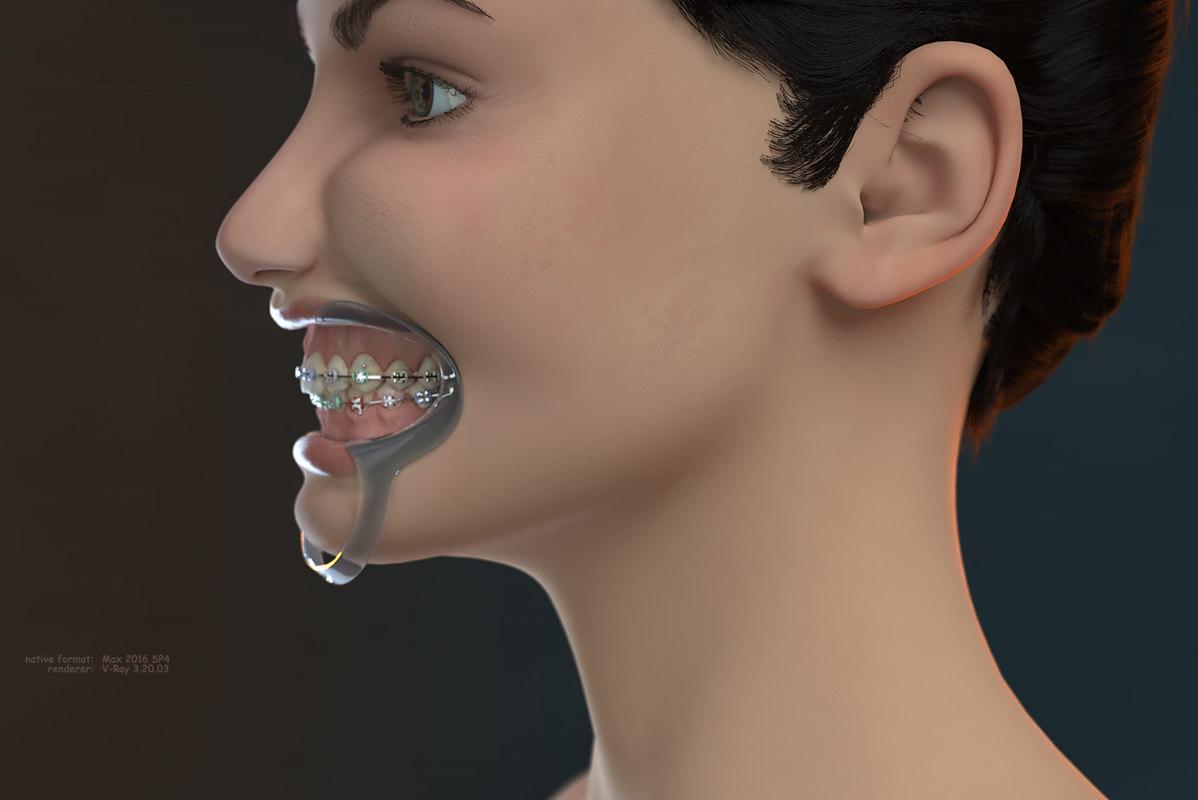 3D model orthodontic head v-ray ortho