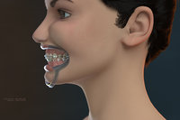 3D model orthodontic head v-ray ortho