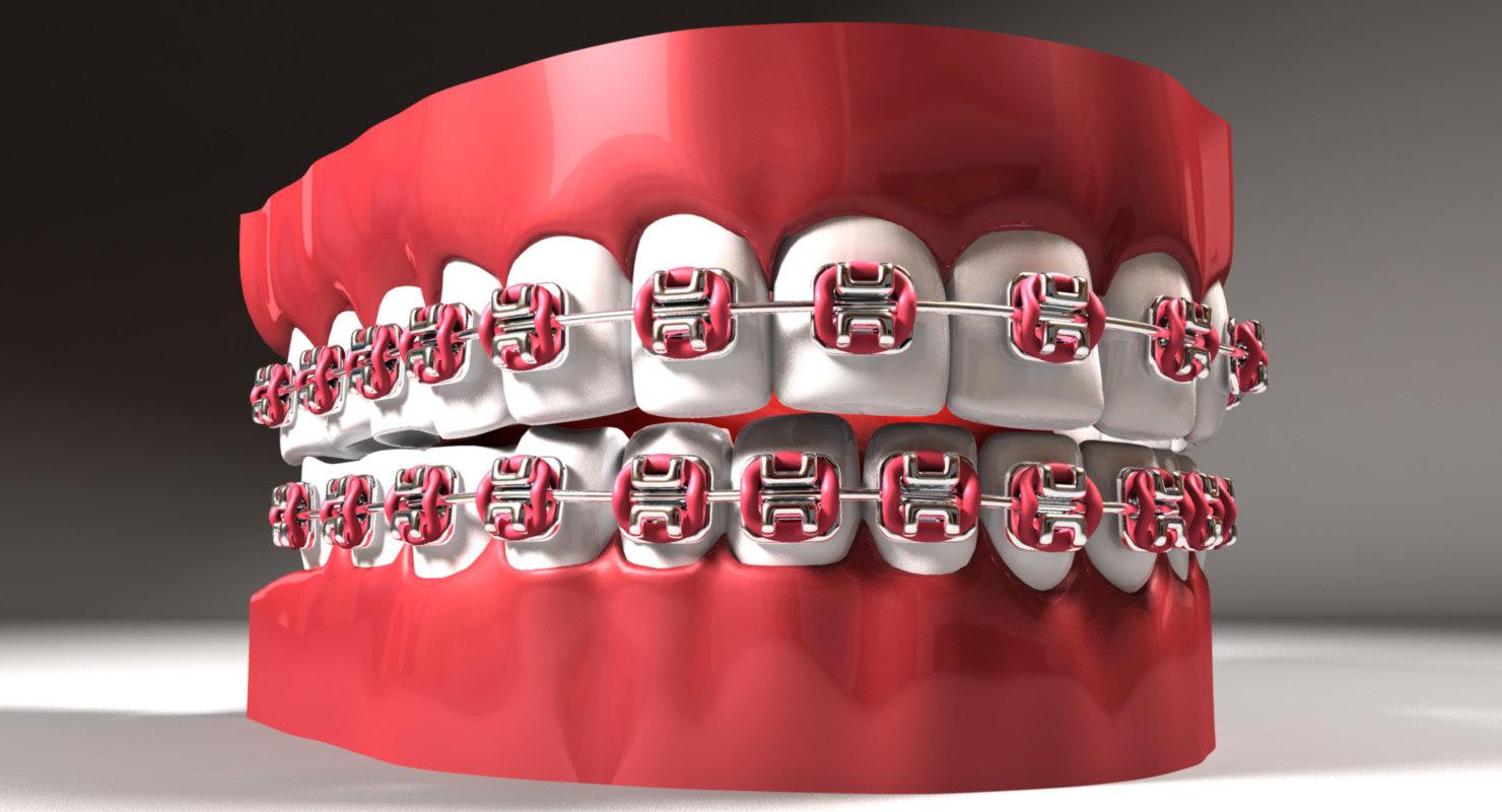teeth braces 3d model