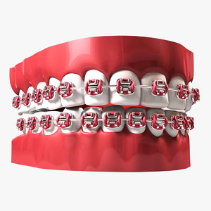 teeth braces 3d model