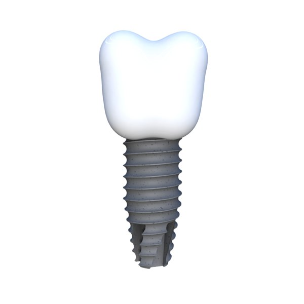 3D tooth implant model