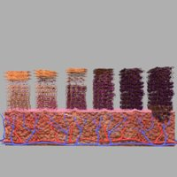 cervical cancer cin 3D model