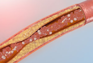 blood vessel atherosclerosis 3D model