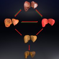 3D alcoholic liver disease fatty model