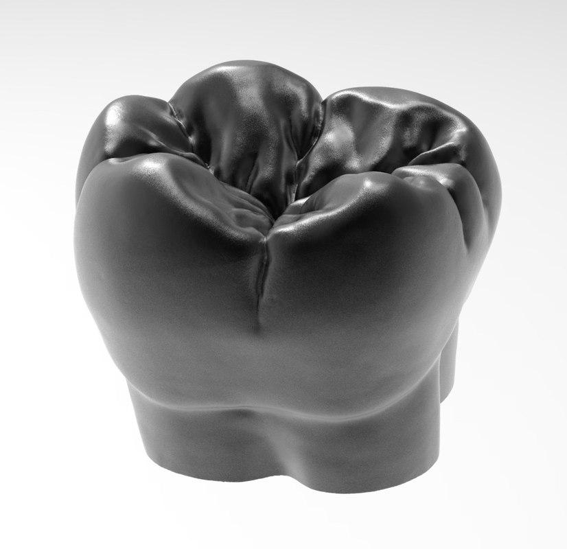 3D molar tooth printing model