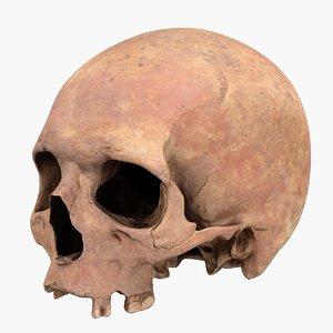 3D real skull model