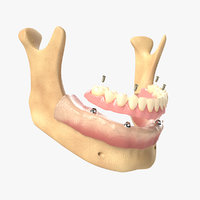 3D denture dental implants