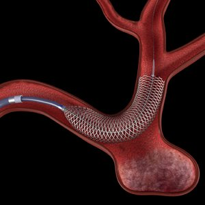 flow diverter aneurysms model