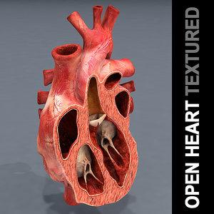open heart 3D model