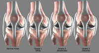Osteoarthritis Knee joint Conditions (Normal, Mild, Moderate, Severe)