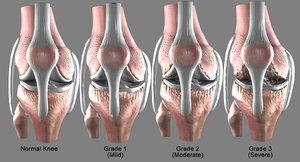 osteoarthritis severe condition knee 3D model