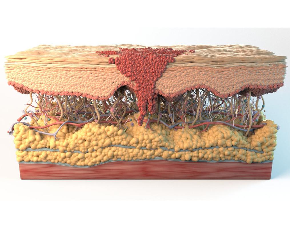 3D skin cancer cells