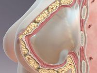 Breast Cross Section Implant