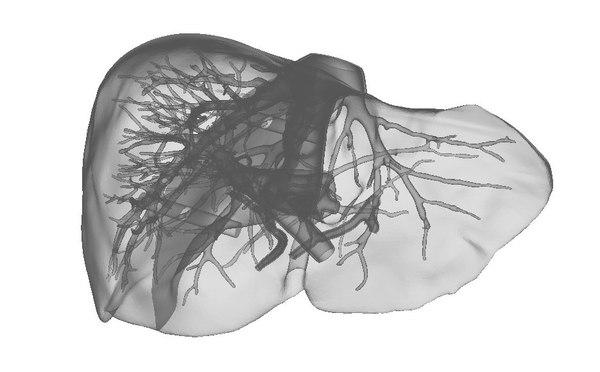 3D liver