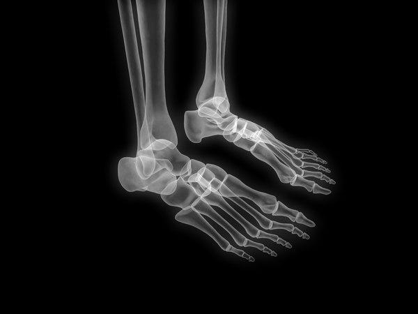 skeleton x-ray 3D model