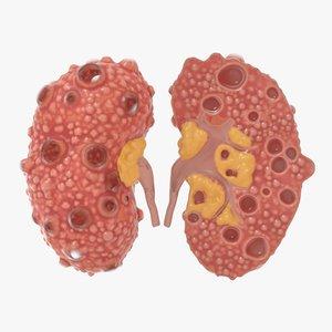 3D polycystic kidney