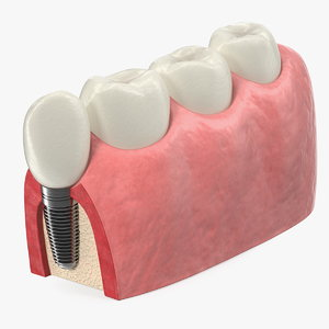3D model education tooth implant modeled