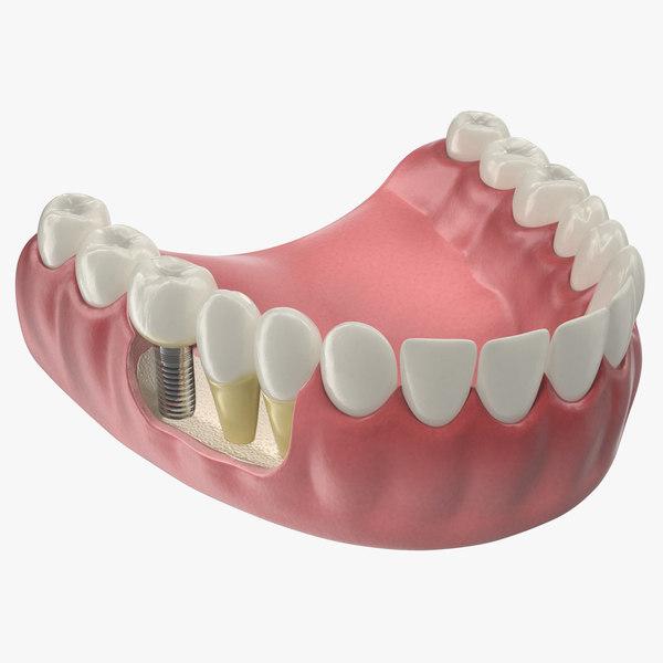 lower teeth medical dental 3D model