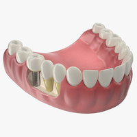 Lower Teeth Medical Model With Dental Implant
