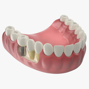 lower teeth medical dental 3D model