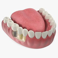 Teeth Tongue Medical Model With Dental Implant