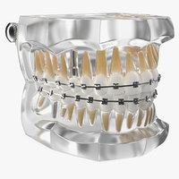 transparent dental typodont bracket 3D model