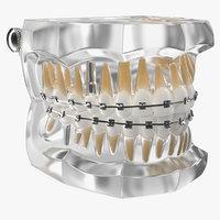 transparent dental typodont bracket 3D model