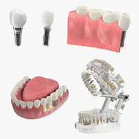 tooth implants 3D model