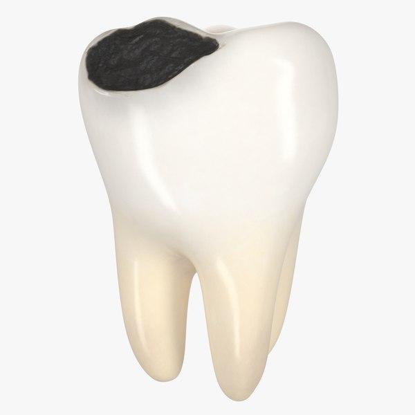 3D teeth decay