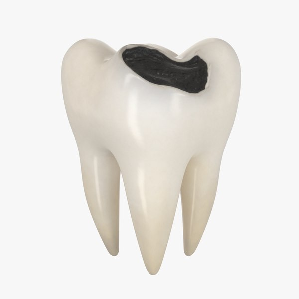 teeth decay 3D model