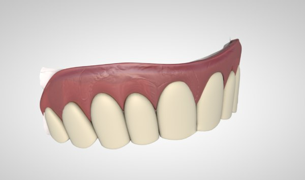 3D model crown veneer teeth