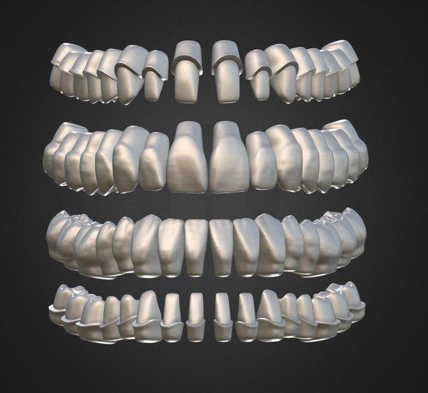 3D model dental anatomy library thimble