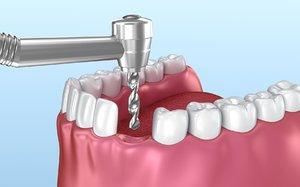 dental implant instalation animation 3D model