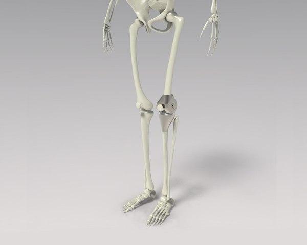 knee tumor prosthesis 3D