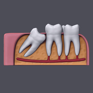 3D wisdom impaction tooth